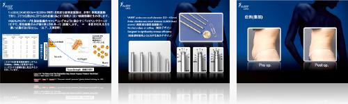ベイザーリポについて日本美容外科学会で発表を行いました 写真3