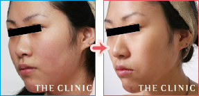顔/頬の症例