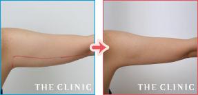 二の腕の症例